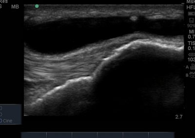 Long axis view of distended and anechoic superficial infrapatellar bursa