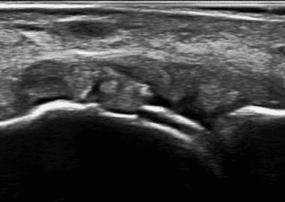 Gout and ultrasound