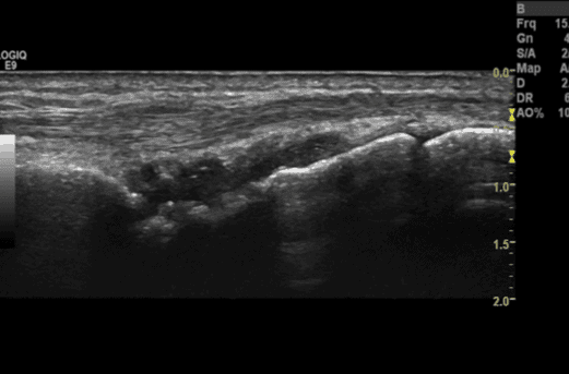 Figure 1 : Grayscale view of Radiocarpal synovitis